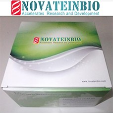 Preview ELISA Kit package from Novateinbio